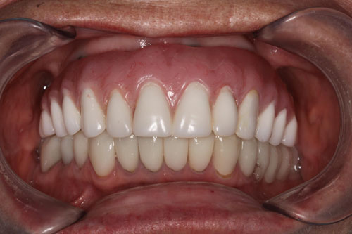 A placed upper implant denture