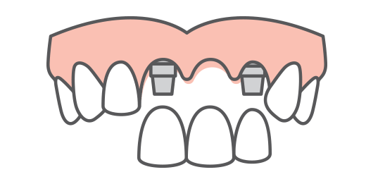 replace-multiple-teeth-implants